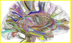 connexions-cerebrales