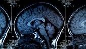 portrait cerveau